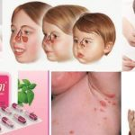 Thuốc kháng viêm đông dược an toàn cho trẻ