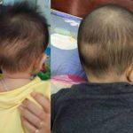 8 dấu hiệu và 3 giai đoạn ở trẻ còi xương