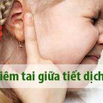 Trị viêm tai giữa cho trẻ bằng bài thuốc hay