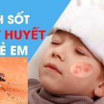 Cách phân biệt sốt xuất huyết với sốt phát ban