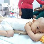 Con gái 16 tháng tuổi bị bỏng, mẹ bôi kem đánh răng làm mát và nhận cái kết vô cùng đau đớn