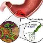 Vi khuẩn H.Pylori nguyên nhân chủ yếu gây đau dạ dày – tá tràng, viêm loét và ung thư dạ dày