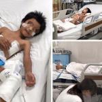 Tin mới: Bé trai nguy kịch chỉ vì vết xước té xe đạp